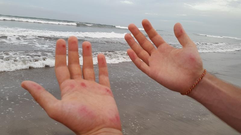 На этот раз катание закончилось вот такими стертыми руками.